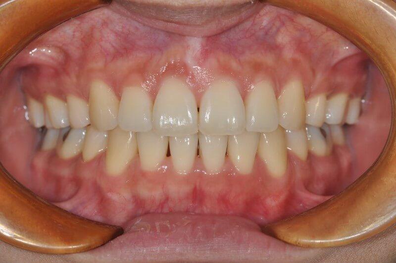 前牙開咬 暴牙 林口牙齒矯正 林口齒顎矯正