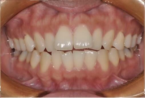 前牙開咬 暴牙_林口牙齒矯正 林口齒顎矯正