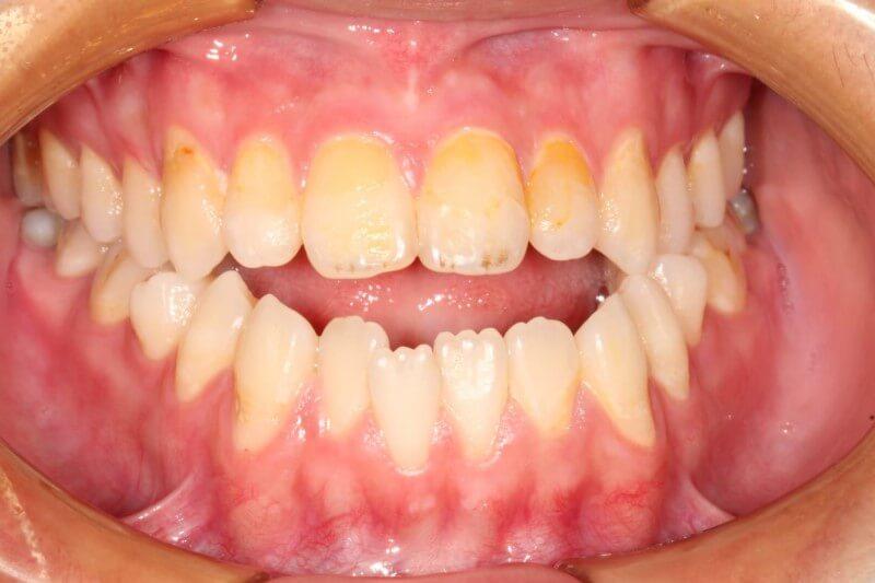 戽斗 開咬 林口牙齒矯正 林口齒顎矯正