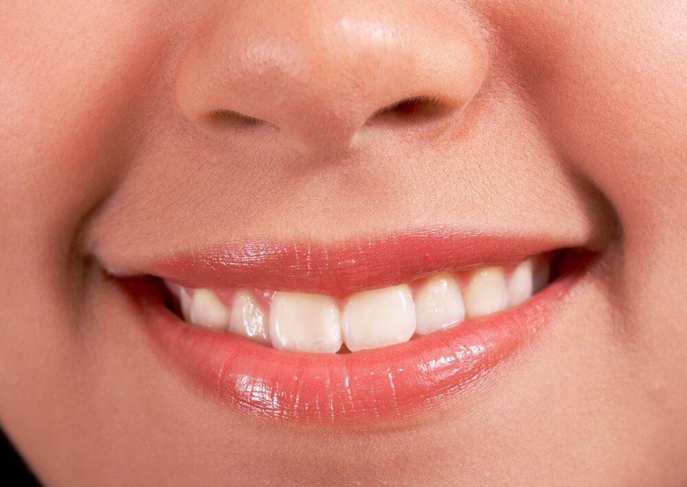 【植牙注意事項】植牙後保養很重要,不遵守小心植牙失敗