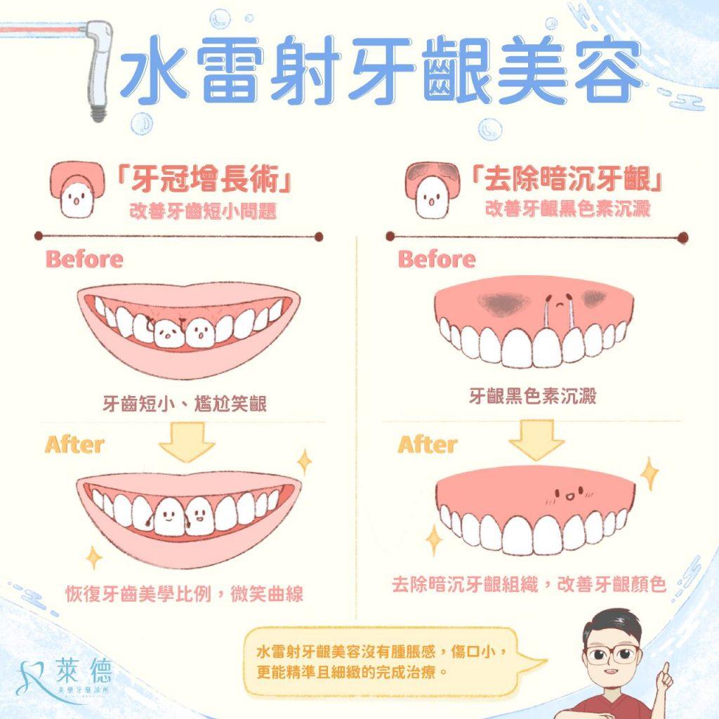 水雷射牙齦