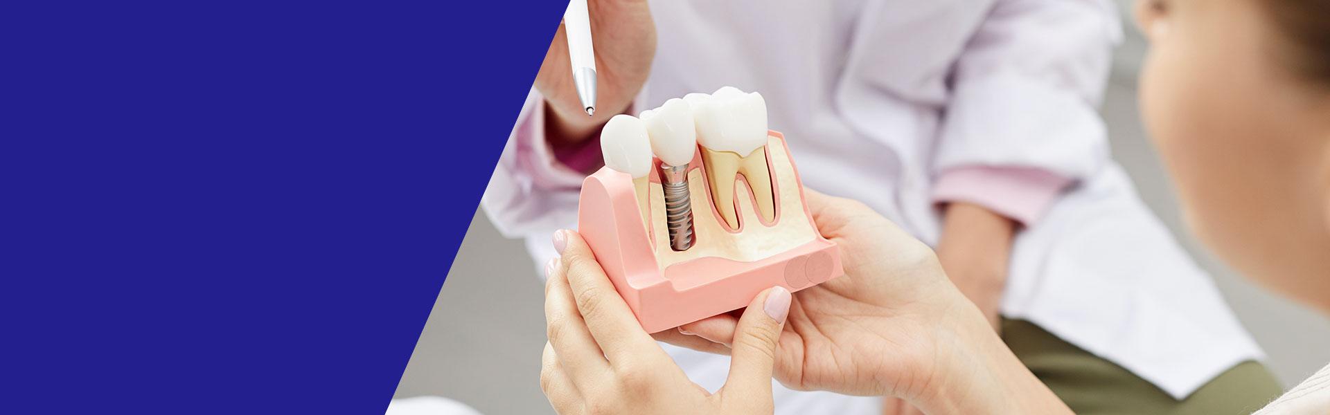 植牙補骨粉會痛嗎?專業醫師告訴您植牙補骨的原因和原理