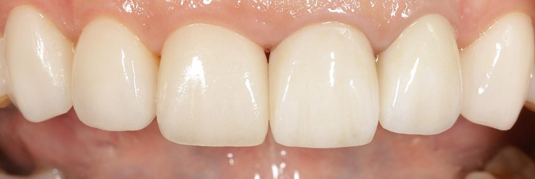 20201105水雷射牙齦美容+陶瓷貼片2
