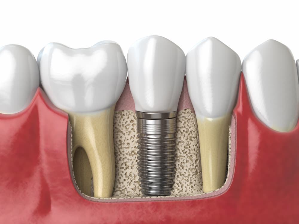 anatomy-of-healthy-teeth-and-tooth-dental-implant--PAF6ZMW (1)